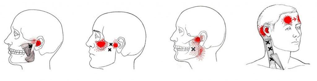 Tinnitus Myofascial pain